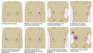 What to look out for (Image courtesy of Breast Cancer Care)