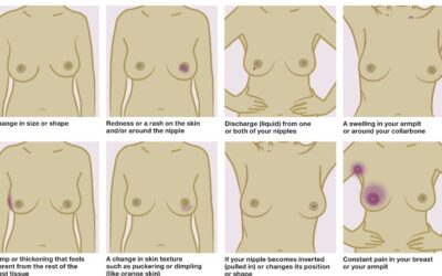 What you need to know about breast awareness ...