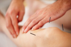 Could acupuncture help energise breast cancer patients?
