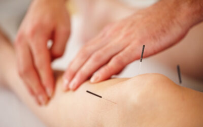 Acupuncture in the summer