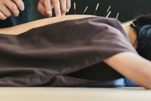 Changing careers - the long road to acupuncture