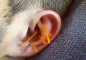 auricular acuuncture