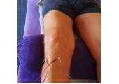 Electro Acupuncture for knee pain
