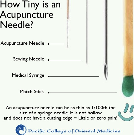 acupuncture-needle