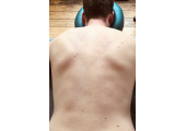 Body work therapy for Head, neck , shoulder and back pain