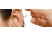 Auricular Acupuncture for addiction, stress, anxiety, migraine, panic attacks