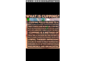 info about cupping