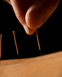 Sunny Jaspal Acupuncture & Massage