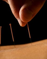 Sunny Jaspal Acupuncture & Massage