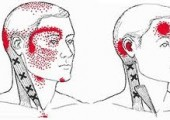 Trigger Points to relieve headaches and TMJ
