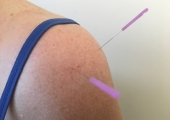 Joanna combines osteopathy and acupuncture in her treatments