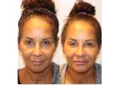 Uplifting Facial Massage