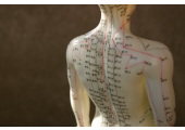 Classical style Acupuncture