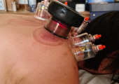 I also use an Infrared Cupping Massager for those specific painful spots
