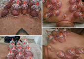 More Cupping shots