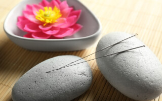 Chinese acupuncture and migraines